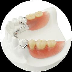 Partial Dentures Odenton, MD
