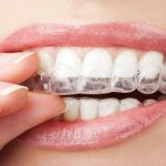 Odenton MD Orthodontist