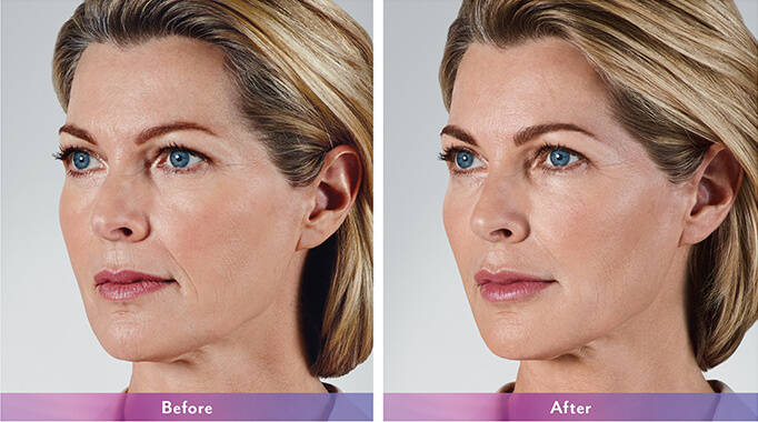Botox before and after
