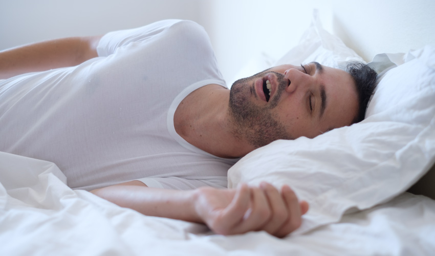 Man with sleep apnea sleeps with his mouth open on a bed with white sheets