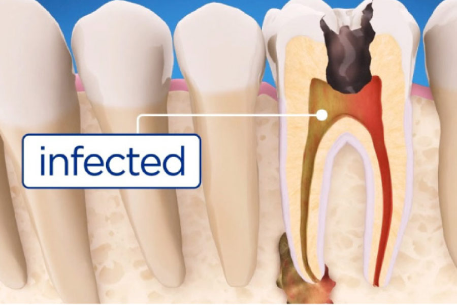 illustration of root canal infection